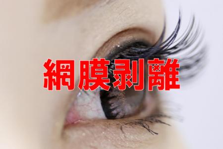網膜剥離の病院ランキング
