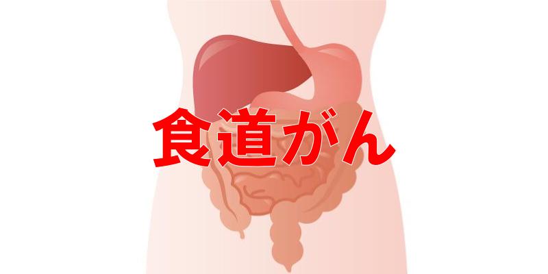食道がんの病院ランキング